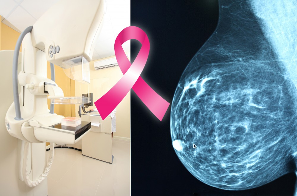 Adopting the ACS New Breast Cancer Screening Guidelines Could Prove Dangerous and even Lethal for Many Women.